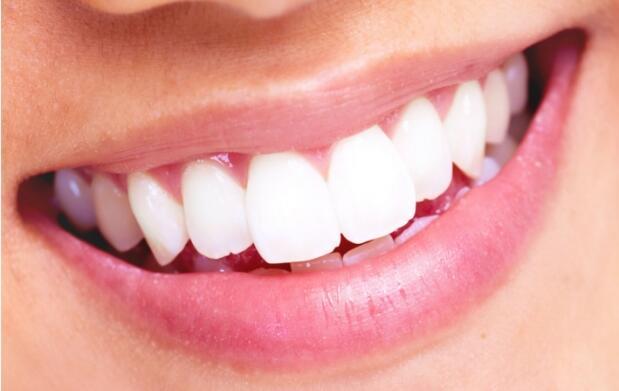 Revisión, limpieza dental y empaste