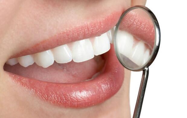 Revisión y limpieza dental en Oviedo