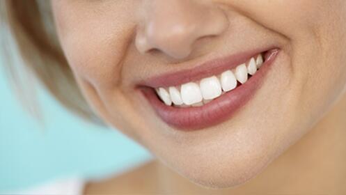 Limpieza dental con opción a blanqueamiento