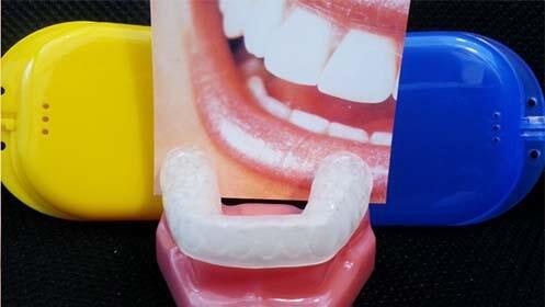 Revisión dental y limpieza o férula de relajación
