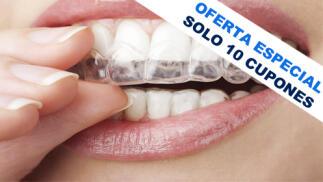 Ortodoncia completa para niños y mayores