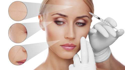 Mesoterapia facial médica inyectada