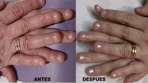 Tratamiento unisex uñas mordidas